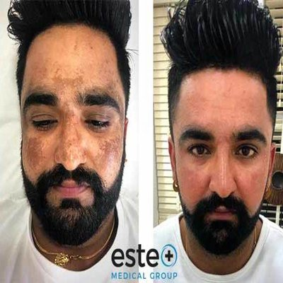 The World's Leading Depigmentation Treatment Now Available At Este Medical Group!