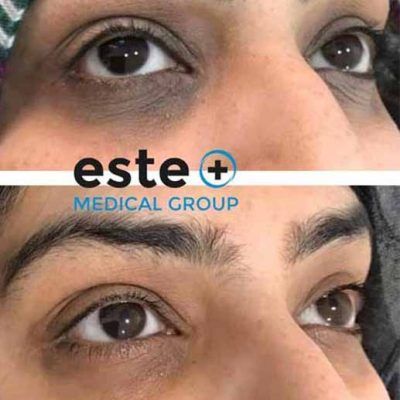 Dark circles – what causes them and how can I treat it?