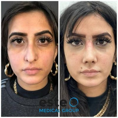 Este Medical Group are changing lives with rhinoplasty surgery!