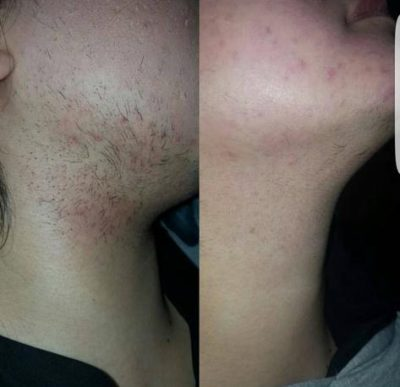 Benefits of laser hair removal treatment