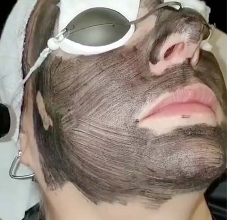 Carbon laser facial price
