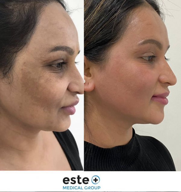 Treatment of Pigmentation on face