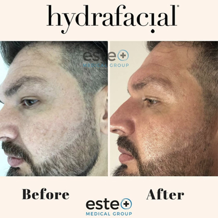 Are HydraFacial's worth it?
