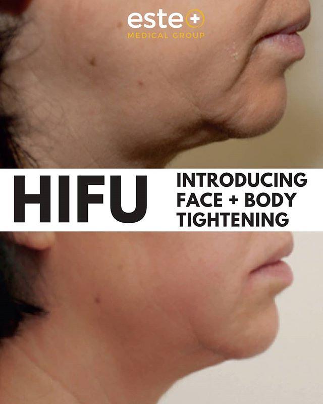 HiFu - New Treatment Alert!