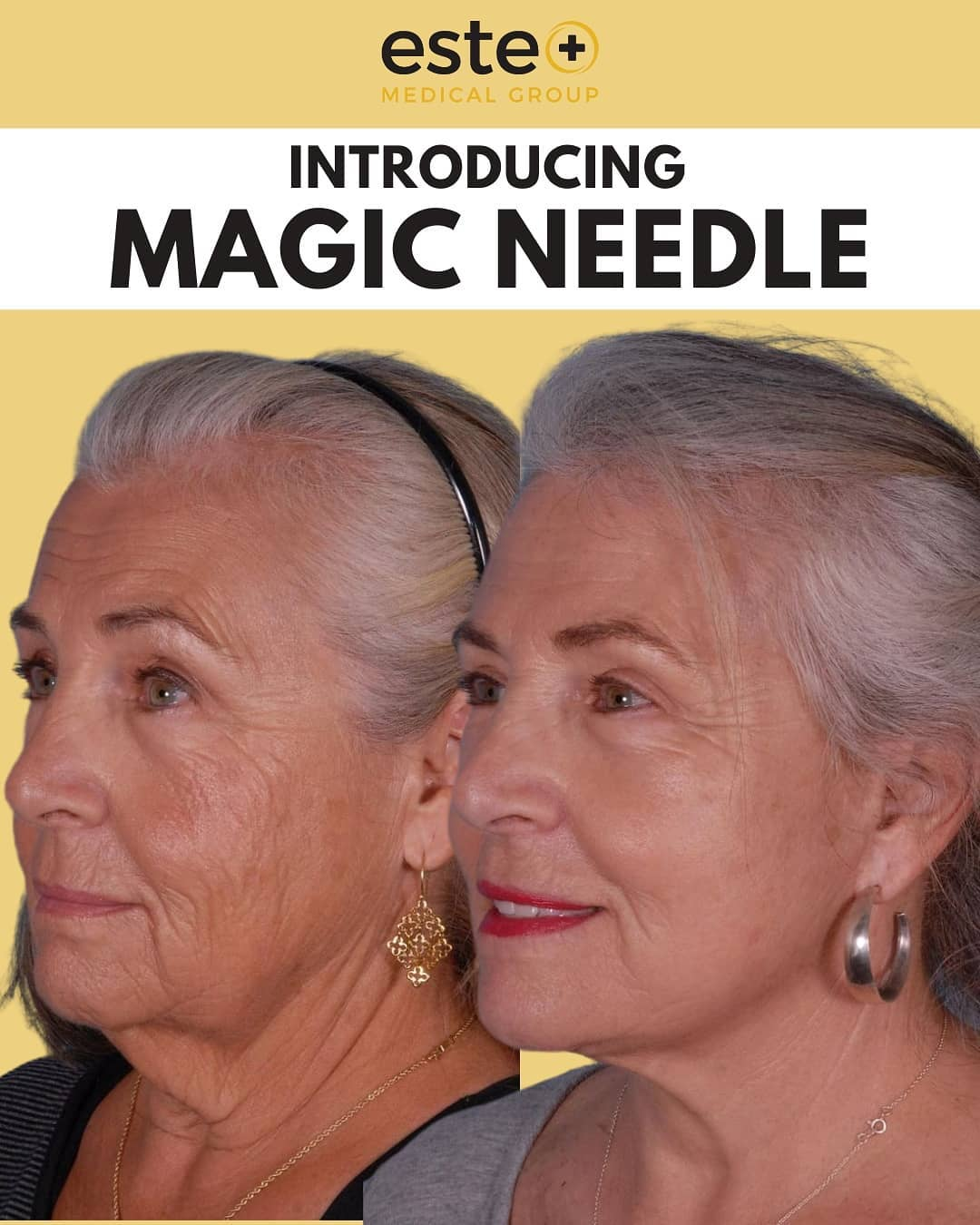 The EXCLUSIVE Magic Needle