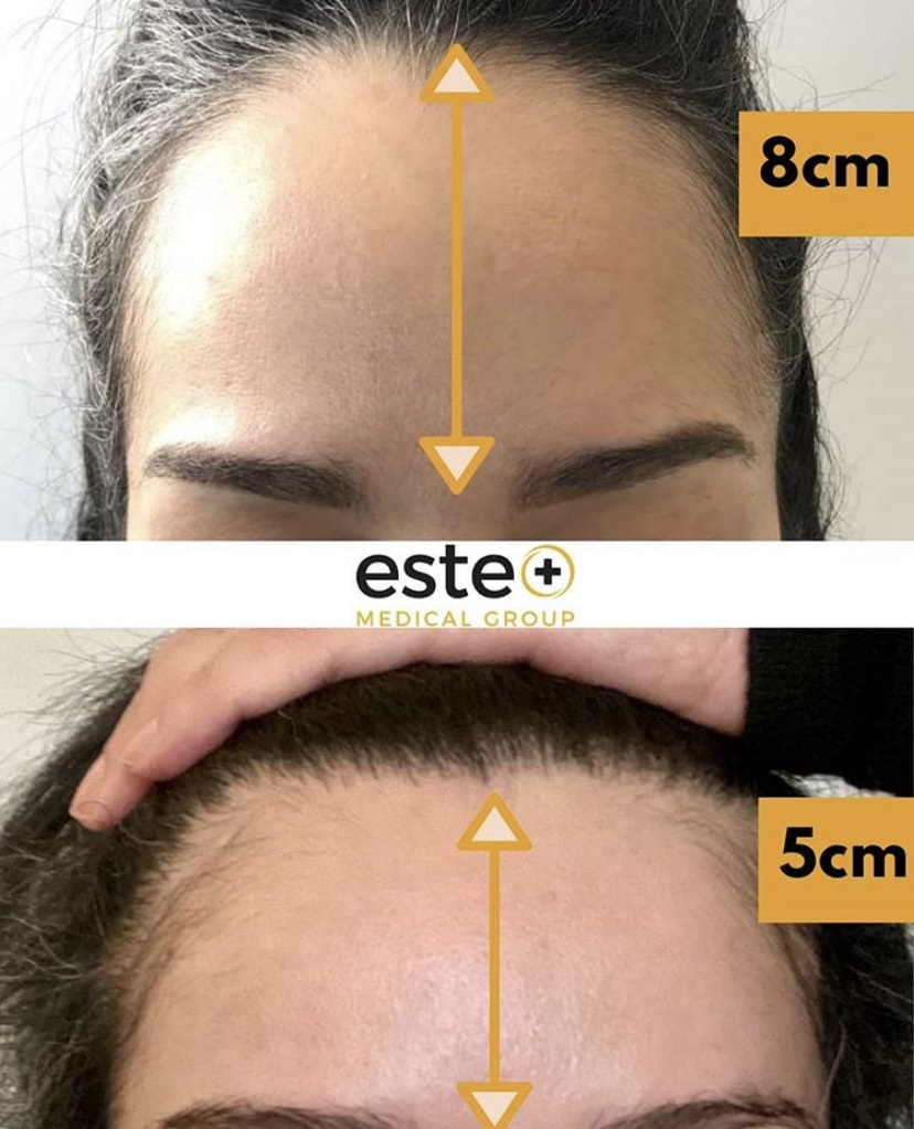 FUE Hair Transplant for forehead reduction