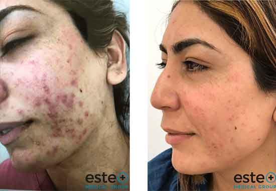 Reduce Acne Scarring with Este Medical Group
