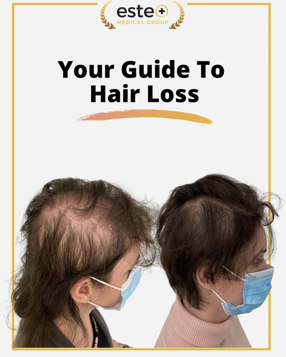 Your guide to hair loss