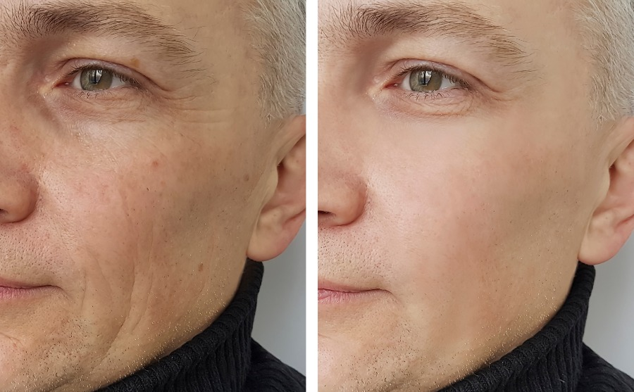 Facial wrinkles before and after treatment