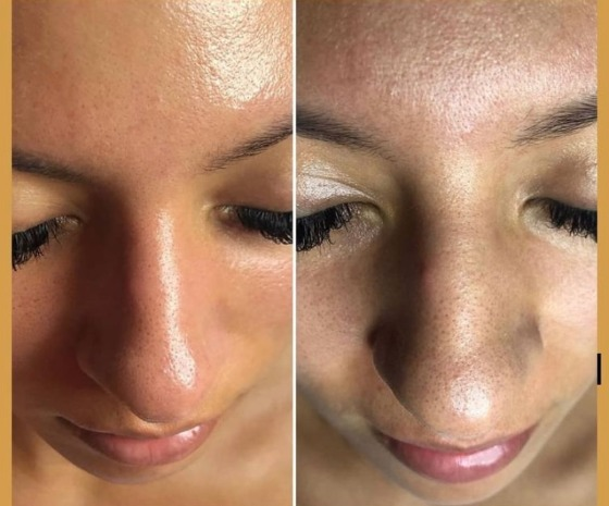 Whitehead and blackhead before and after treatment