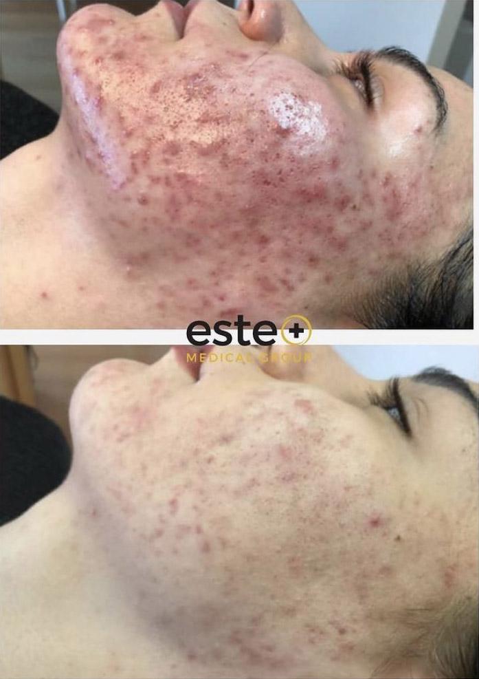 acne laser treatment Birmingham