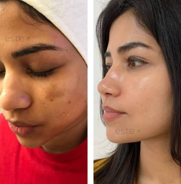 dull skin before / after treatment