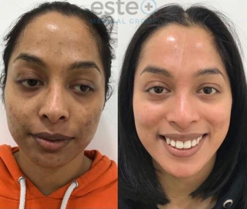 scar removal Nottingham