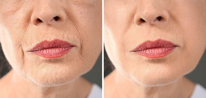 Smile lines before and after treatment