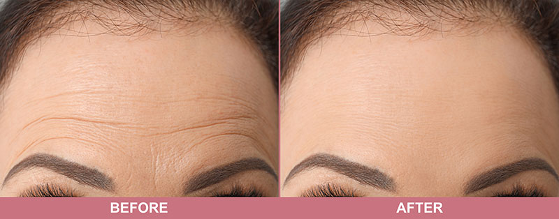 Frown lines before and after treatment