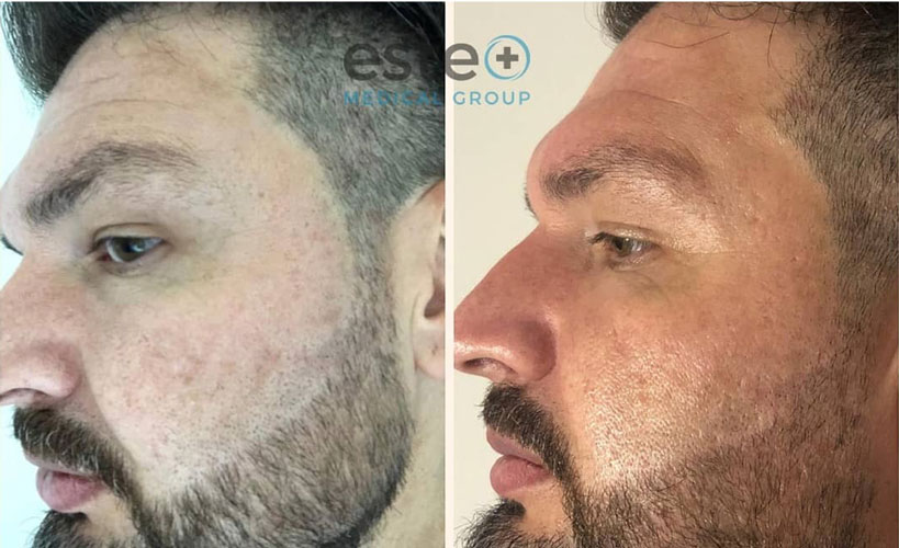 Dry skin before and after treatment