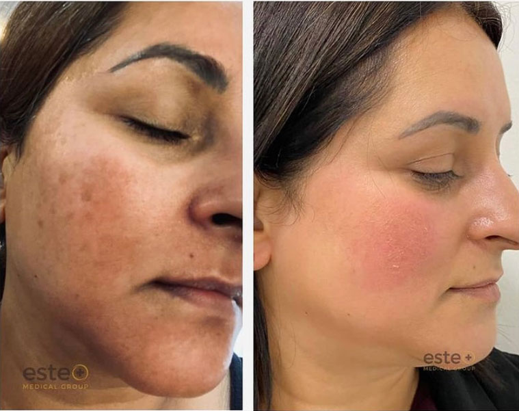 Age spots before and after treatment