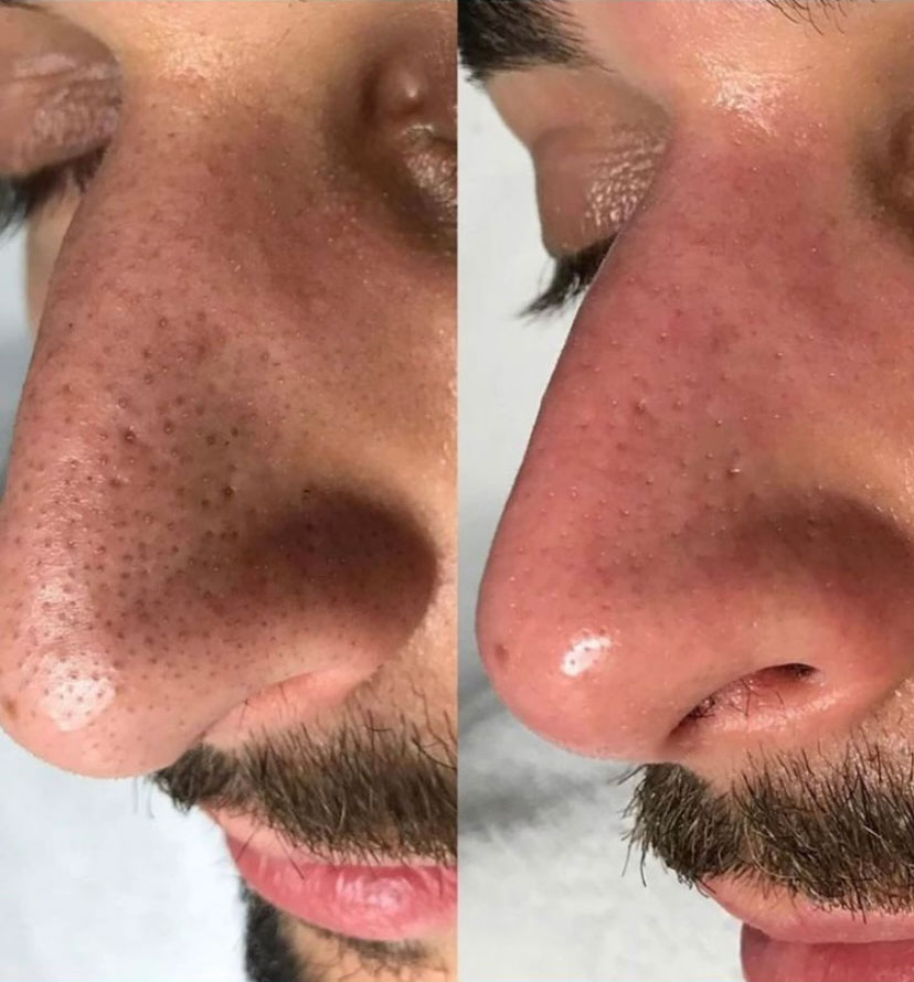 Large Pores Before / After Treatment