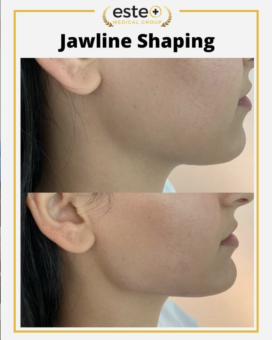 Jawline Shaping Using Dermal Fillers