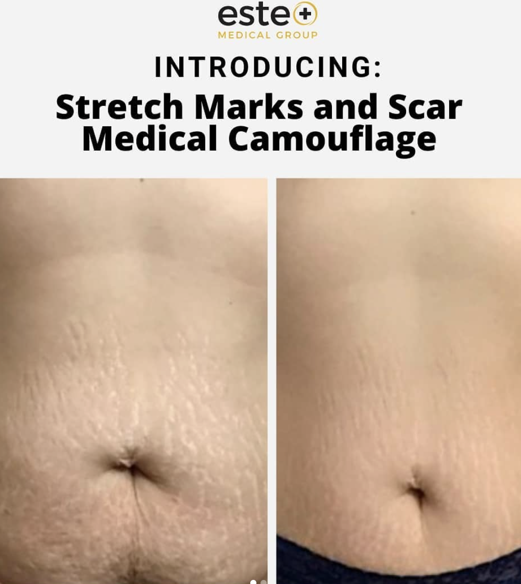 And For Today's Magic Trick...We Make Your Stretch Marks Disappear