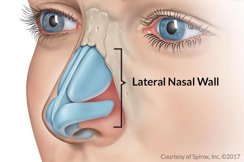 Nasal Valve