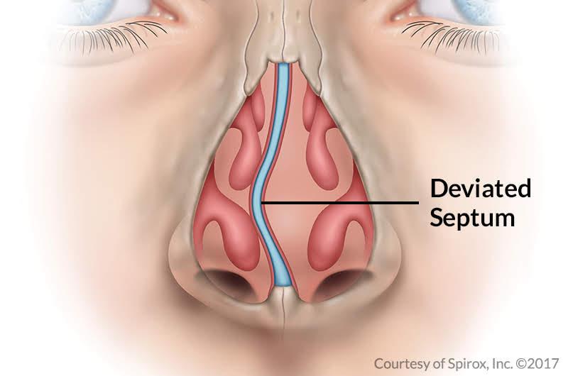Deviated Septum diagram