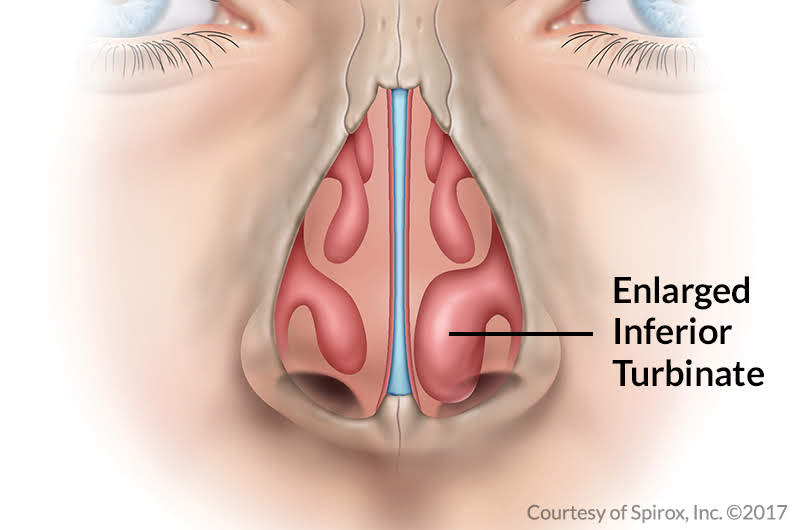 Enlarged, or obstructed, turbinates