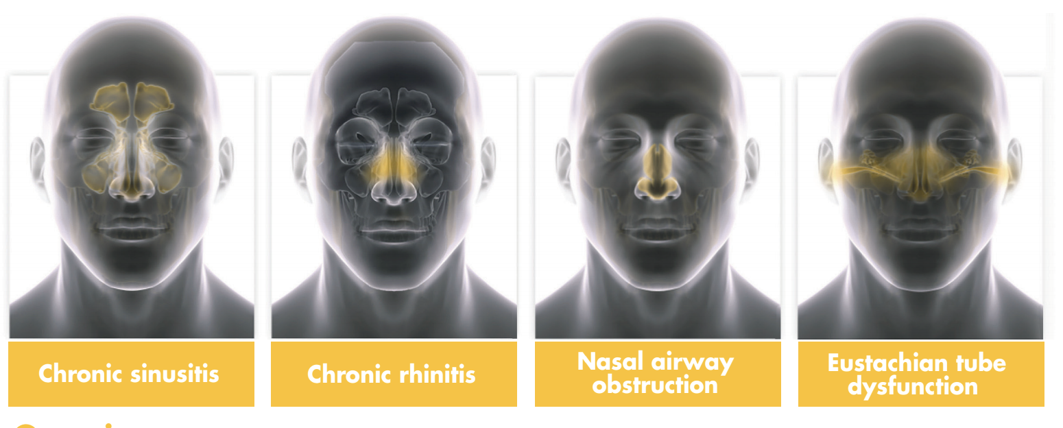 Sinus conditions that can be improved by surgery