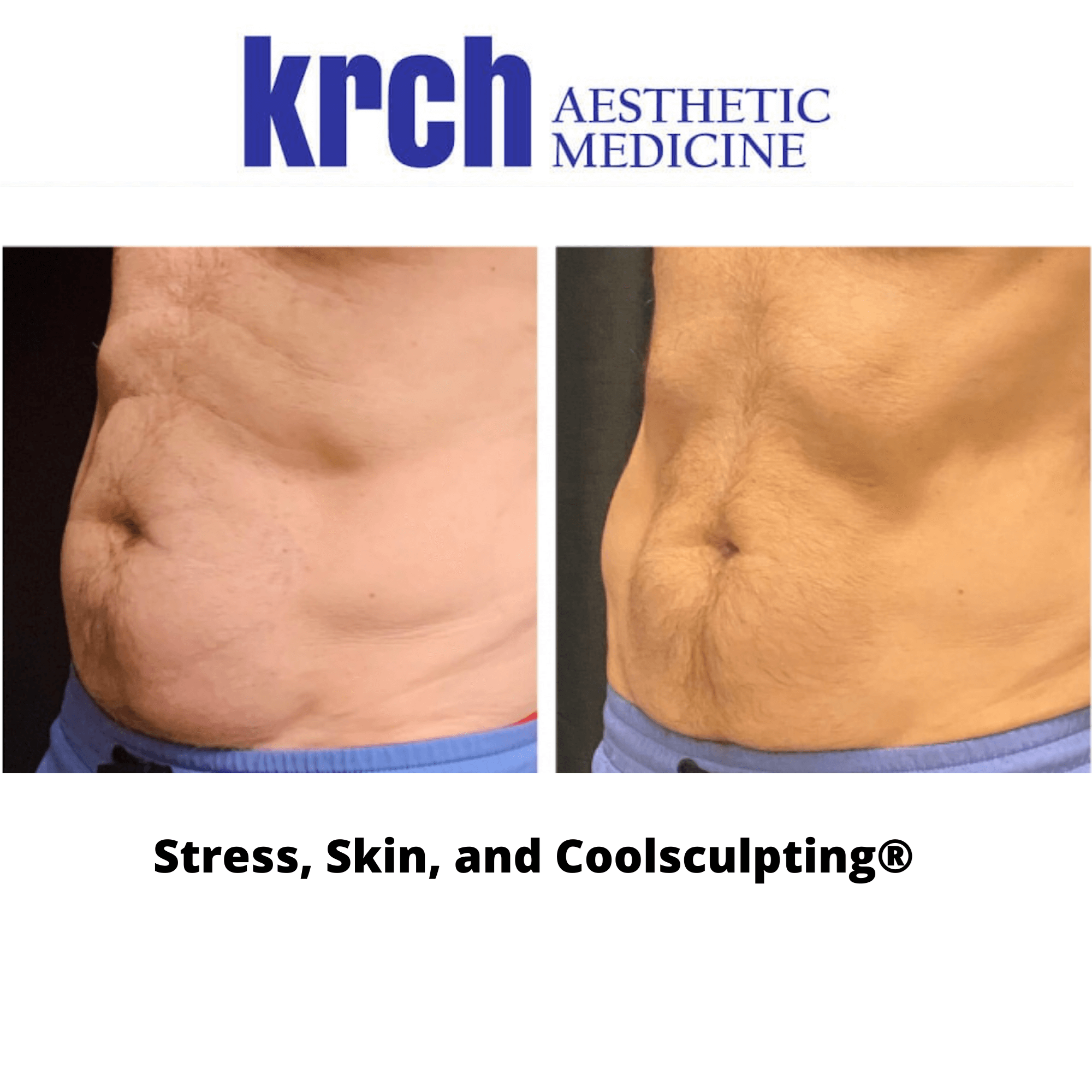 What Makes CoolSculpting® A Popular Treatment in Phoenix?