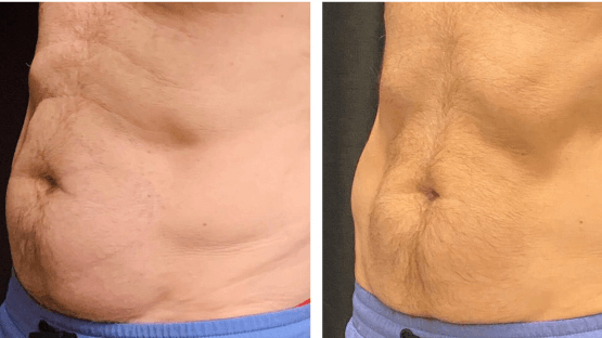 Stress, Skin, and Coolsculpting®