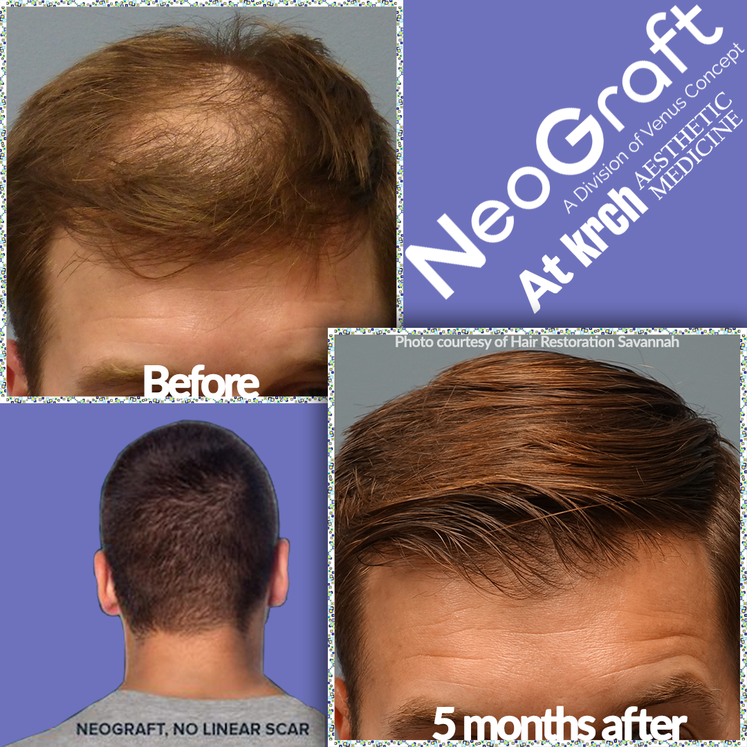 20% off Neograft
