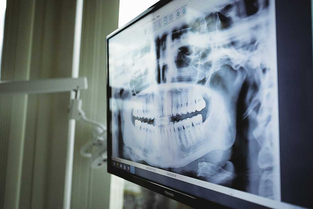 Photo of an x-ray image on a monitor