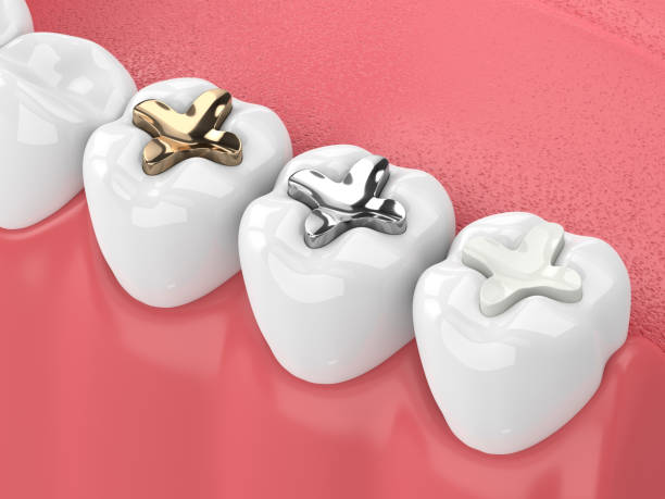 Two dental sealants situated on teeth (one silver and another gold)