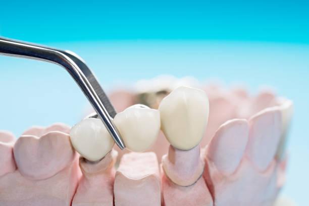 Dental crowns being placed on fake teeth