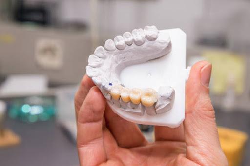 Person holding a dental bridge replica.
