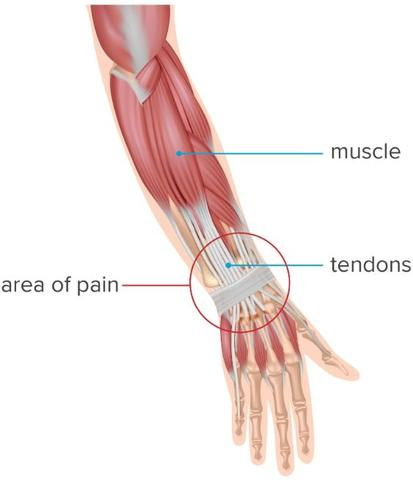 Illustration of the wrist tendons and arm muscles
