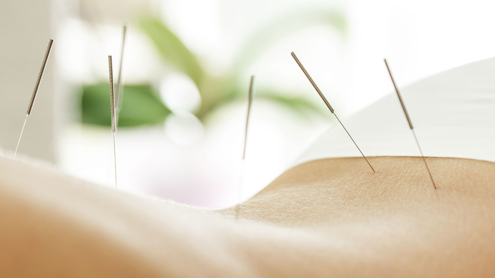 photo of acupuncture