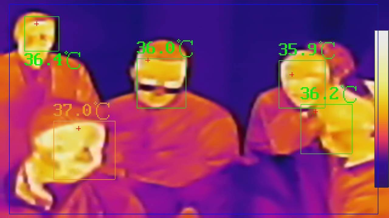 Thermal Body Temperature Camera