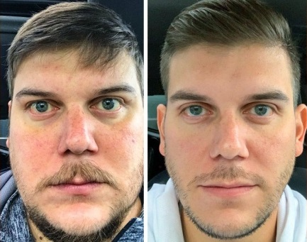 Effects on the skin whilst drinking and the change after stopping