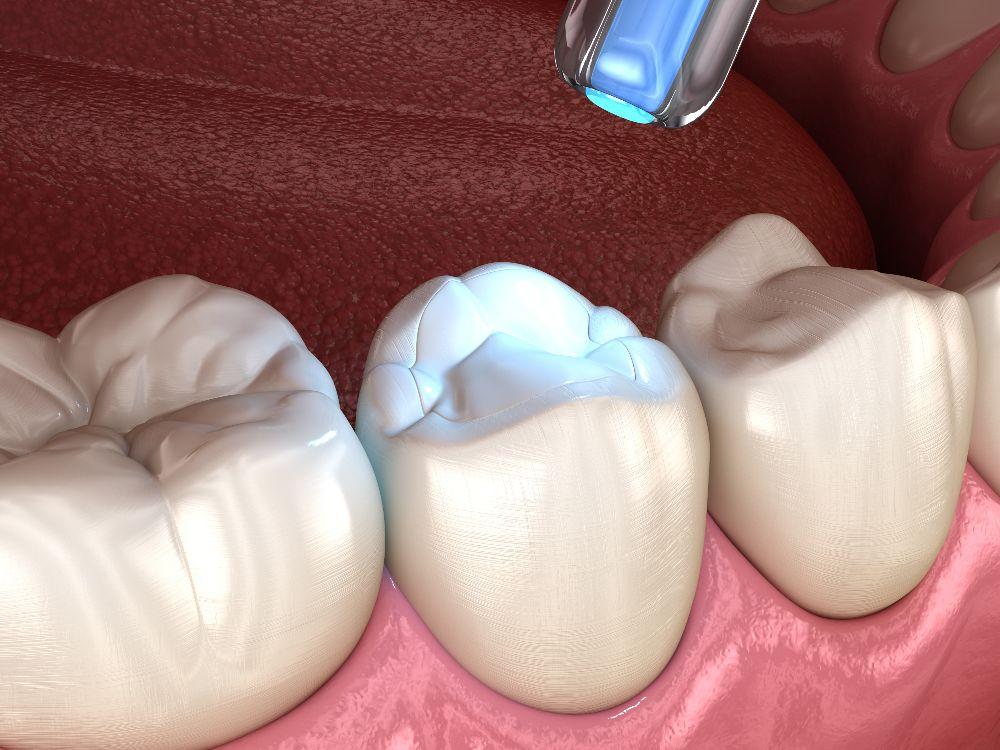 teeth sealant