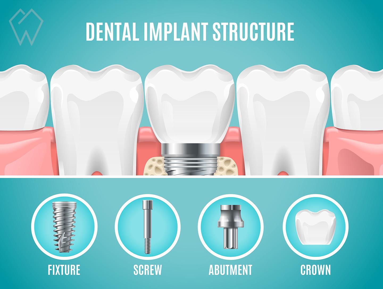 Dental Implants Structure