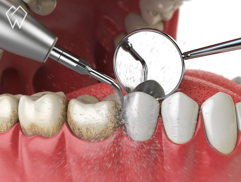 Dental Teeth Cleaning Procedure