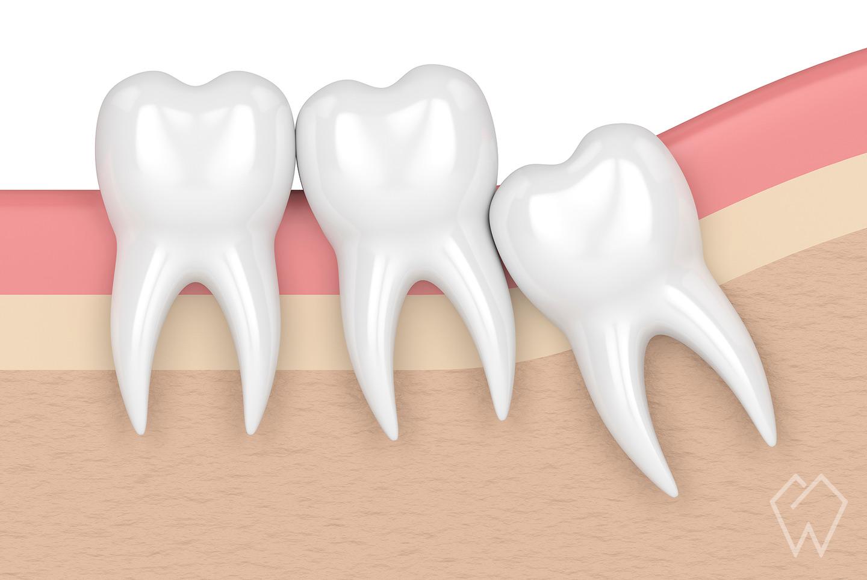 Wisdom Teeth Removal Dentist Cleveland