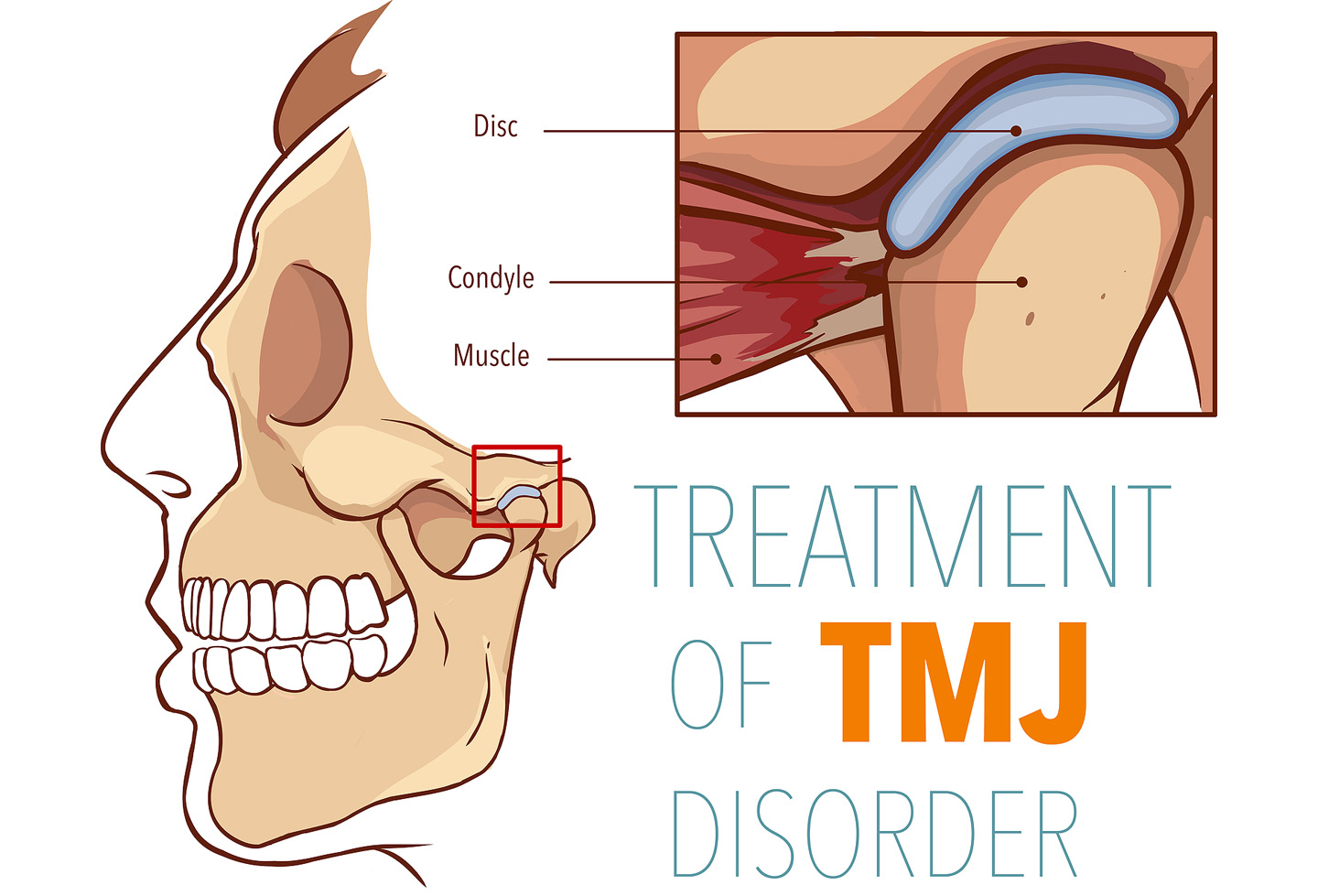 TMJ Disorder Treatment Cleveland