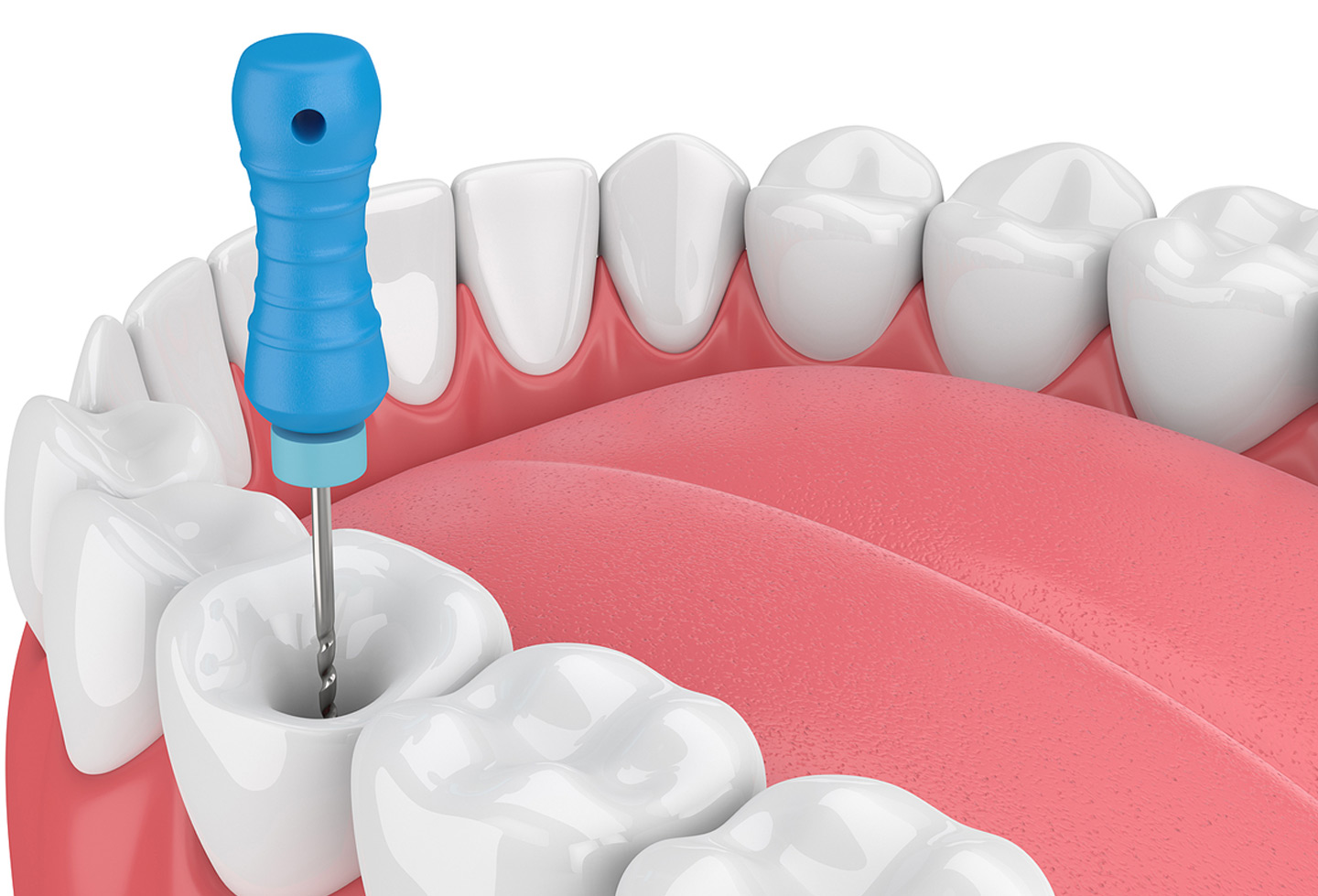 Cleveland Root Canal Dentist