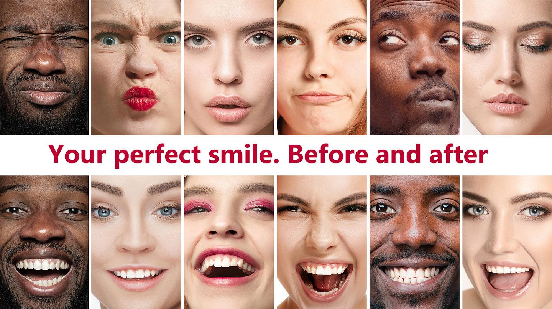 Teeth Whitening Dentist Cleveland