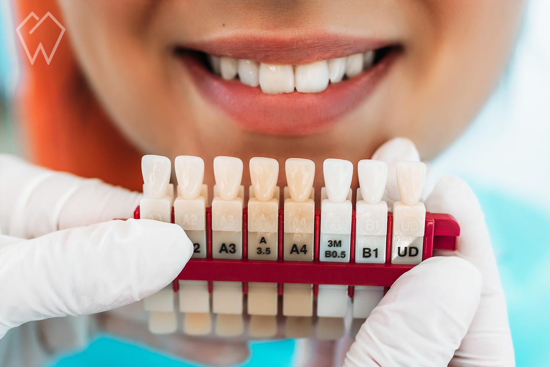 Cleveland Teeth Whitening Dentist