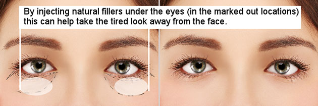 tear troughs