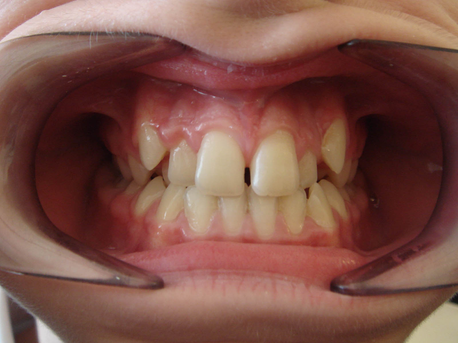 Crowded Dentition Case - Before