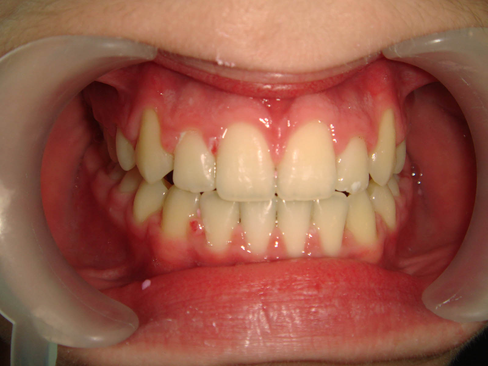 Treated With Fixed Braces - After